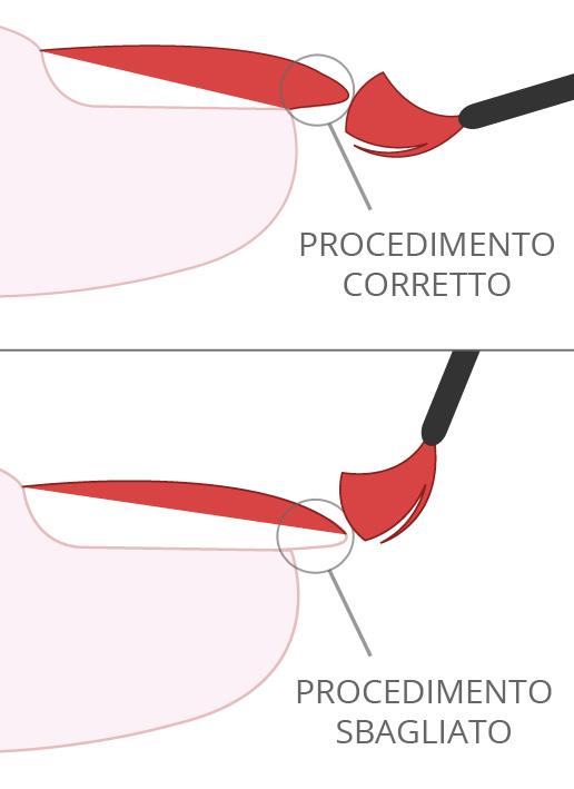 procedimento applicazione smalto gel